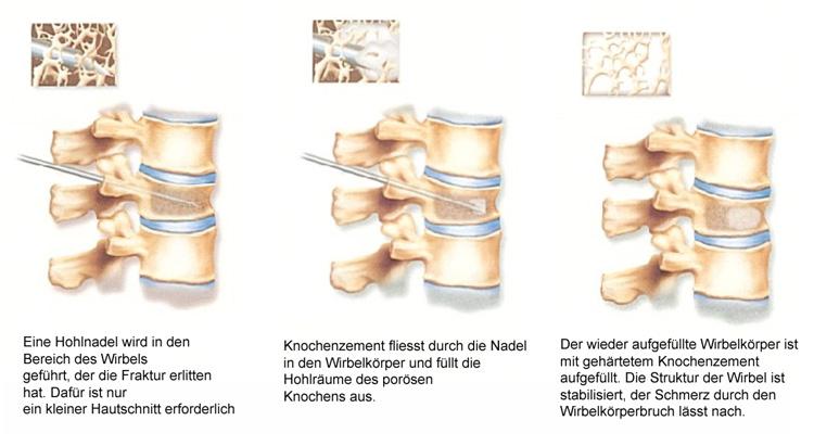 Kyphoplastie und Elastoplastie: Stabilisierung nach Osteoporose ...