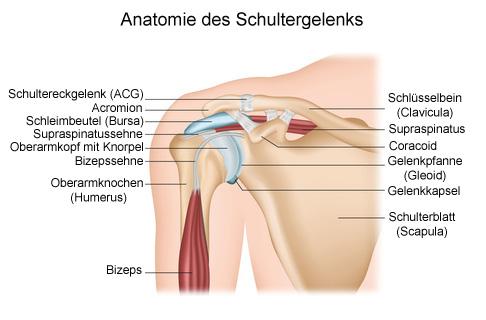 Schleimbeutelentzündung der Schulter (Bursitis subacromialis ...