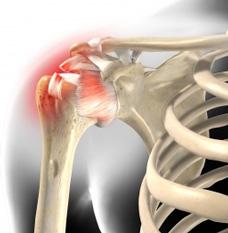 Schultergelenk | Gelenk-Klinik.de