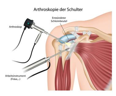 Operation bei Schulterimpingement: Neer Plastik
