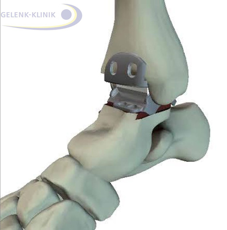 A modern 3rd generation Hintegra ankle prosthesis consists of three components. Between the articular surfaces is the mobile plastic (PE) core. As a result the prosthesis is mobile and supports the natural pattern of gait as it is coordinated by the ligaments of the ankle joint.