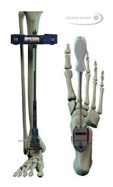 Imagen 11: Ajuste y fijación de la prótesis de tobillo. A la izquierda se ve el ajuste del eje con un instrumento, el cual es controlado por imágenes de Rayos-X con un captador de imágenes móvil. El ajuste es planeado en tomas preoperatorias y dado el caso también fijado en combinación con una imagen total de la pierna. © Dr. Thomas Schneider