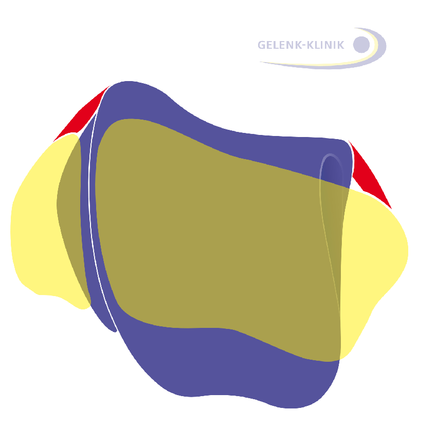 The position of the talus (purple: ankle bone, yellow: calf bone and shin) is impacted by the surrounding ligaments of the ankle.