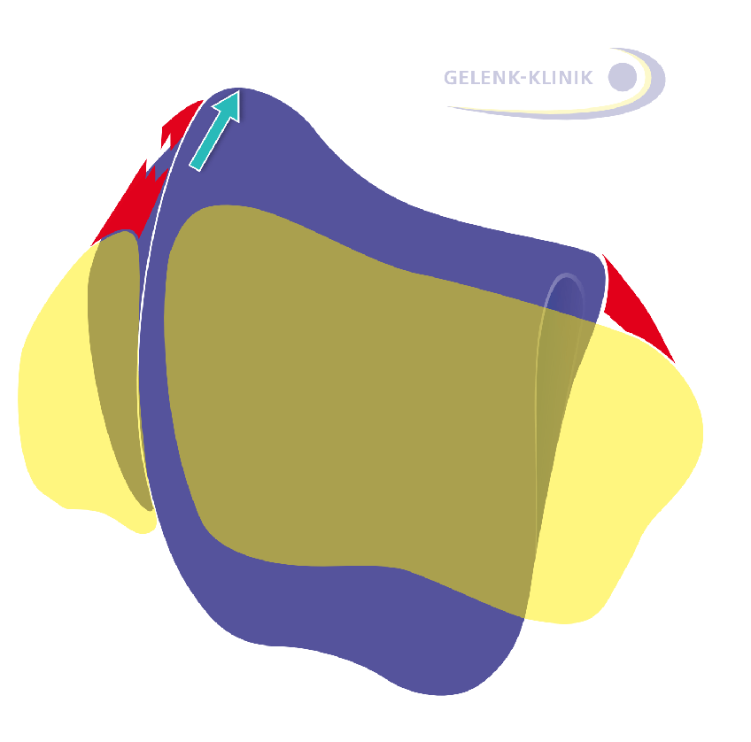 A rupture of the lateral ligament destabilises the talus (ankle bone) and results in a raised lateral (outside) talus. (purple: ankle bone, yellow: calf bone and shin)