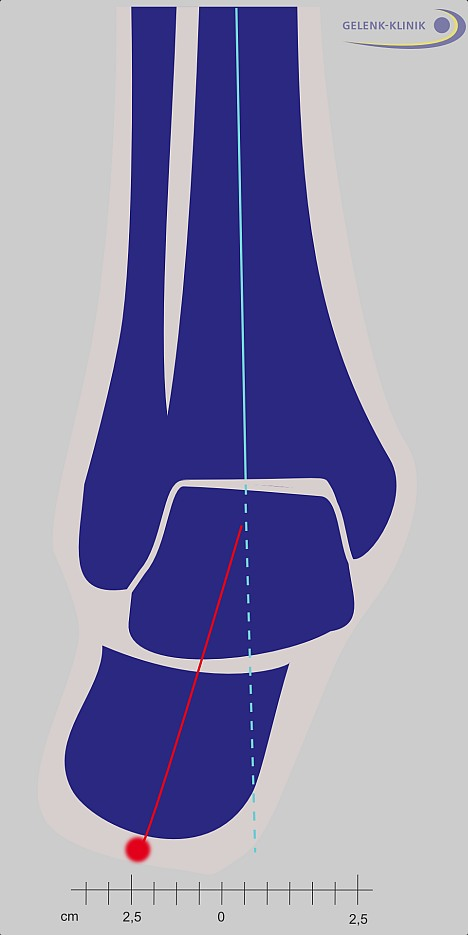 The valgus position of the heel bone (X-position or inward buckling) is a deformity of the ankle. This can become an ankle osteoarthritis. The deformity has to be corrected prior to implanting an ankle prosthesis to assure proper weight distribution.
