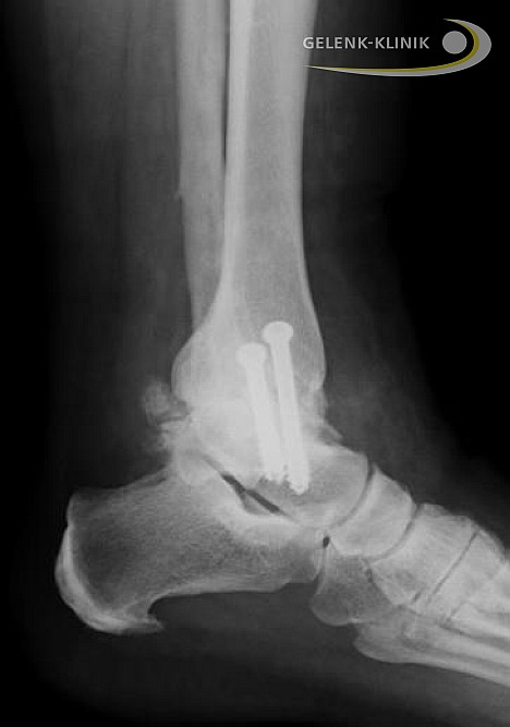 Alternative to ankle replacement: Arthrodesis of the ankle joint fuses the bones in the ankle joint. First, the remaining cartilage has to be removed surgically. After joint fusion by screws or intramedullary nails the bones in the ankle ossify: osteoarthritis related pain can no longer occur. A fusion surgery can also be reversed many years later and replaced by a mobile ankle prosthesis.