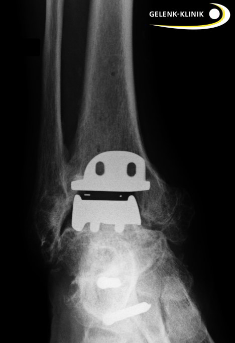 Ankle replacement is possible only after successful osteotomy (conversion and realignment of the bones).