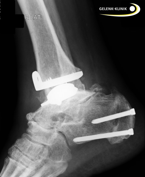 Ankle joint prosthesis lateral view after surgical correction of the lower leg axis through osteotomy.