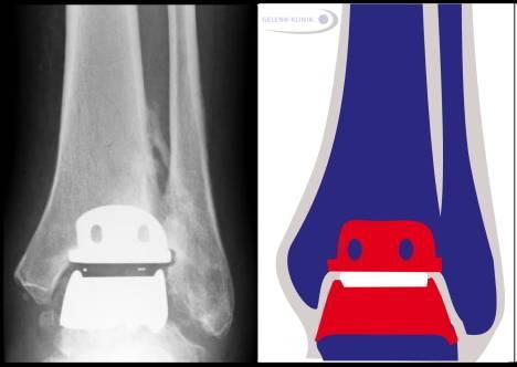 Протез голеностопного сустава состоит из трех компонентов, один из которых покрывает большеберцовую кость. Части протеза не соединены между собой и перекрывают пораженные участки сустава. Имплантаты срастаются с костными тканями сустава. Компоненты удерживаются за счет мышц и связок. Также долговечность протеза диктуется прямой осью ног и крепкими связками.© Gelenk-Klinik.de