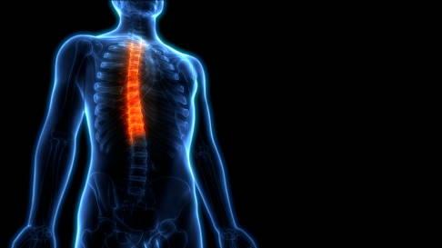 Kreuzband Schmerzen síntomas de diabetes